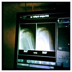 Radiographie de l'épaule. Photo: LSDP